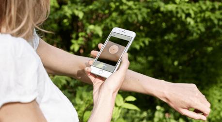 Cilt kanseri riskini ölçen uygulama SkinVision