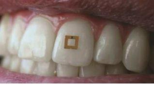 Diş yüzeyine yerleştirilen minik sensörler ile diyet takibi dönemi başlıyor